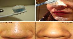 Um método incrível: use uma escova de dentes e se livre dos cravos imediatamente! | Cura pela Natureza
