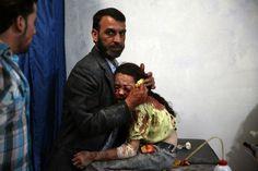 General news, 2° posto (Storie), Abd Doumany, Siria, 2015, Agence France Presse   Una bambina siriana ferita consolata da un parente in un ospedale da campo di Douma, una cittadina controllata dai ribelli e bombardata dalle forze armate governative siriane.