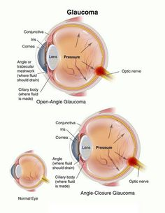 Different kinds of glaucoma
