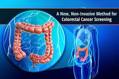 Learn about exciting new research into a new, non-invasive colorectal cancer screening method.