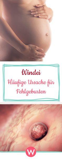 Leider nicht schwanger - Windeier sind einer der häufigsten Auslöser für eine Fehlgeburt. Was es damit auf sich hat #schwangerschaft #kinderwunsch #gesundheit