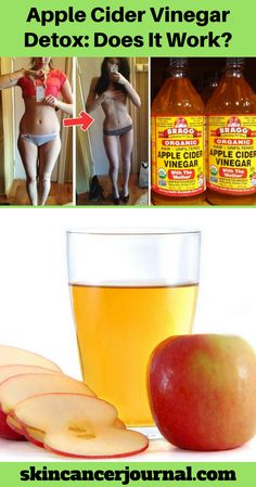 Get Fine apple cider vinegar does it work apple cider vinegar does it work! # Get Fine apple cider vinegar does it work apple cider vinegar does it work! Turmeric Tea Benefits, Apple Health Benefits, Avocado Health Benefits, Apple Cider Vinegar Remedies, Apple Cider Vinegar Benefits, Apple Cider Vinegar Detox, Weight Loss Drinks, Weight Loss Smoothies, Detox Cleanse For Weight Loss