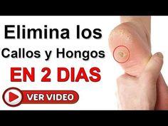 Elimina Los Juanetes Con Estos Remedios Caseros Eficaces Y Naturales - YouTube