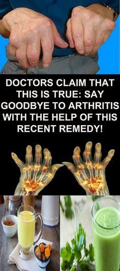 DOCTORS CLAIM THAT THIS IS TRUE: SAY GOODBYE TO ARTHRITIS WITH THE HELP OF THIS RECENT REMEDY