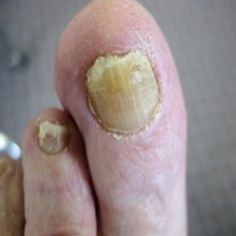 Different Types Of Fingernail Disorders
