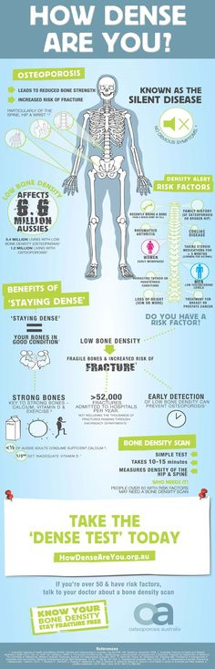 "What is osteoporosis – Symptoms of osteoporosis How Dense Are You ? Osteoporosis infographic link a3c36fd2d15bf44bc942505192f65148 What is osteoporosis - Symptoms of osteoporosis Illustration showing difference between osteoarthritis and rheumatoid arthritis ""Osteoarthritis, the most common form of arthritis, involves the wearing away of the cartilage that caps the bones in your joints. With rheumatoid arthritis, the synovial membrane that protects and lubricates joints becomes inflamed…"