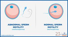 Consider, that sperm motility ability to move