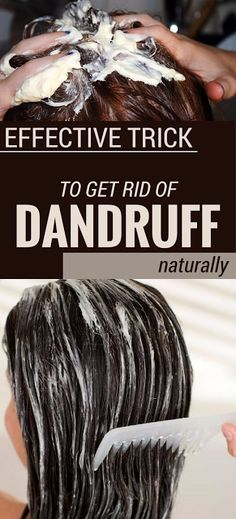 EFFECTIVE TRICK TO GET RID OF DANDRUFF NATURALLY