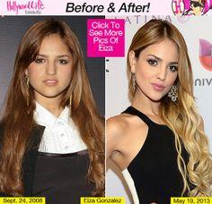 Eliza Gonzalez. Now I want a nose job again. #healthymedia