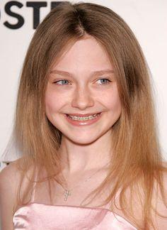 Dakota Fanning with braces     #braces #straightteeth #orthodontics