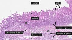 histological slides of the duodenum - Google Search