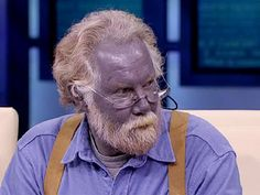 Blue People of Appalachia | ... was shocked to learn a person actually can have naturally blue skin