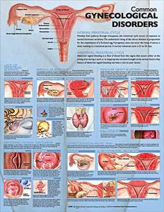 Poster defines menstrual cycles, abnormal vaginal discharge and regional pain. Mature content. - ObGyn