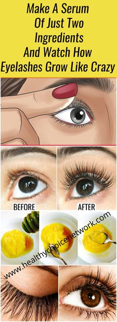 Make A Serum Of Just Two Ingredients And Watch How Eyelashes Grow Like Crazy