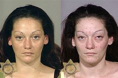 15 Shocking Before-After Pics Showing Effects of Drug Abuse