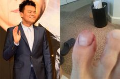 J.Y. Park injures his toe while having naughty thoughts?