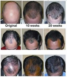 Losing your hair? Discover the natural secret to preventing further hair loss and re-growing lost hair with The Regrow Hair Protocol. Hair Loss Disease, Regrow Hair Naturally, Hair Loss Women, Hair Loss Remedies, Prevent Hair Loss, Hair Restoration, Hair Regrowth, Hair Transplant, Hair