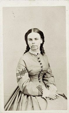 Olive Oatman, Tattooed By The Mohave, 1857. ( Oatman was tattooed on her chin and arms in keeping with the tribal custom for those who were tribal members. Oatman later claimed that she was tattooed to mark her as a slave of the Mohaves, but this is inconsistent with the Mohave tradition in which such marks were given only to their own people to ensure both that they would enter the land of the dead, and be recognized as Mohaves by their ancestors.)