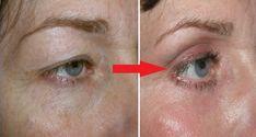 Sagging Skin Remedies Natural Remedy For Drooping Eyelids, Sagging Eyelids Or Hooded Eyes - Drooping Eyelids, Droopy Eyes, Natural Skin Tightening, Skin Tightening Cream, Hooded Eyelids, Hooded Eye Makeup, Mac Eyeshadows, Tighten Loose Skin, Double Eyelid