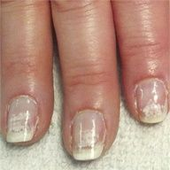 Pinned by www.SimpleNailArt... NAIL CARE: NAIL ART DESIGN IDEAS - Avoid Nail Damage With Proper Gel-Polish Removal - Technique - NAILS Magazine