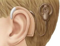 Tips To Consider When Looking For An Industrial Audiology Services Waycross GA Specialist