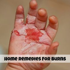 Natural Home Remedies for Burns - Cute Health Home Remedies For Burns, Home Health Remedies, Natural Home Remedies, Natural Healing, Herbal Remedies, Health Tips, Health And Wellness, Health And Beauty, Health Care