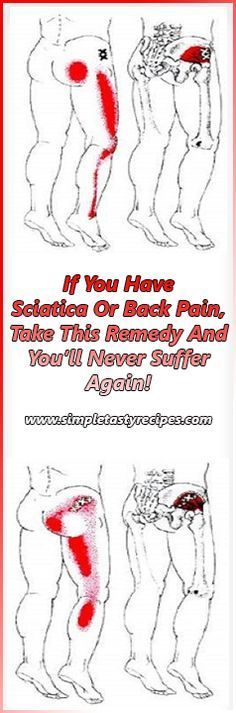 Sciatica pain is usually treated with short-term effect medications, but in this article we're going to present you a natural remedy which will treat your sciatic nerve and make your back pain disappear as well. lower back pain sciatic nerve Sciatica Pain Relief, Sciatic Pain, Sciatic Nerve, Back Pain Relief, Nerve Pain, Sciatica Massage, Sciatica Stretches, Sciatica Symptoms, Chronic Pain