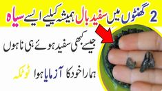 How to turn premature white hair into black permanently at home Skin Care Remedies, Natural Health Remedies, Home Remedies, Long Hair Tips, Hair Care Tips, White Hair Treatment, Hair Tips In Urdu, Islamic Phrases, Islamic Dua