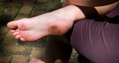 Is Plantar Fasciitis to Blame for Your Bottom of Heel Pain?  | The Joint Pain Clinic