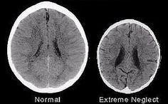 A brain scan picture showing what trauma can do to a brain. It helps people realise the danger of trauma on the brain of a child. Healthy and unhealthy brain development. Emotional Abuse, Emotional Intelligence, Verbal Abuse, Brain Size, Developmental Delays, Stress Disorders, Attachment Parenting, Neuroscience, Baby Health