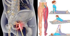 Best food for sciatica how to ease sciatic nerve pain in back,is it sciatic nerve pain neck pain,sciatic nerve anatomy sciatic nerve disease. How To Relieve Sciatica, Sciatica Symptoms, Sciatica Pain Relief, Sciatic Pain, Sciatica Pain Treatment, Sciatica Massage, Sciatica Stretches, Pinched Sciatic Nerve, Arthritis