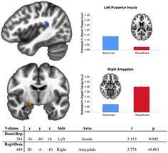 Red Brain, Blue Brain, Again