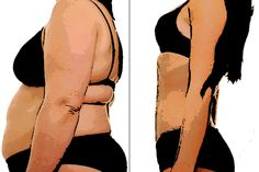 Liposuction, also known as Lipo, is a type of surgery that improves the body shape by removing the extra fat present between skin and muscles. It costs around USD 5882 in Brazil,while the procedure costs about USD 706 in Poland To get a free quote for an affordable treatment, visit: http://www.medhalt.com/affordable-liposuction-lipo-abroad/
