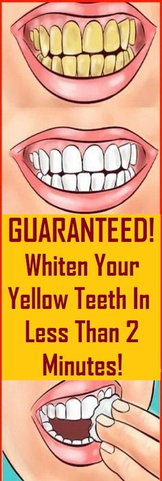 Whiten Your Yellow Teeth In Less Than 2 Minutes! Whiten Your Yellow Teeth In Less Than 2 Minutes! Teeth Whitening Diy, Whitening Kit, Healthy Tips, How To Stay Healthy, Healthy Women, Healthy Drinks, Healthy Recipes, Healthy Habits, Diet Drinks