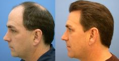 Tips Before, During, and After Hair Transplant Surgery