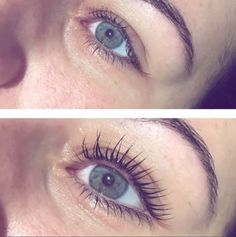 Incredible before and after photos of #lvllashes by @peacepout  #lashlift #LVLLashLift