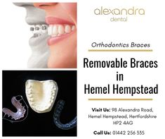 Removable braces are an effective form of treatment to correct crooked and misaligned teeth and bad bites. Alexandra Dental offers fixed, metal, invisible and removable braces in Hemel Hempstead to suit your needs. Misaligned Teeth, Hemel Hempstead, Dental, How To Remove, Suit, Teeth, Dentist Clinic, Formal Suits