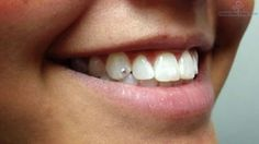 Smiling Girl Have Tooth Gem Piercing Image