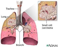 What is extensive stage small cell lung cancer, what are the symptoms, what treatments are available, and what is the prognosis?