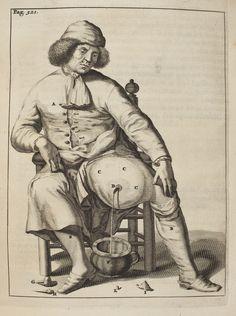 Drainage of tumor  Exercitationes Practicae, (Leiden, 1694)     Author: DEKKERS, Frederick (1644-1720)