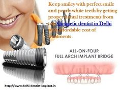 Cosmetic dental implant treatments offer many advantage and it improve overall health of your full mouth. http://www.delhi-dentist-implant.in/cosmetic-dentistry-in-delhi.html