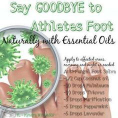 How to Get Started with Young Living Essential Oils Anti-Fungal Foot Salve Works for athlete's foot as well as toe issues Young Living Oils, Young Living Essential Oils, Doterra Essential Oils, Essential Oil Blends, Yl Oils, Foot Remedies, Natural Remedies, Herbal Remedies, Creme