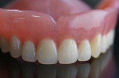 Interested in an implant denture? Open the Removable Implant Denture DOOR on Dental Implants Unlocked to discover this less expensive alternative to the popular All-On-4.
