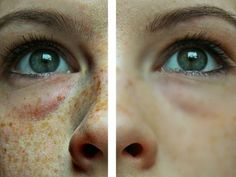 Perfectly Clean Skin Without Brown Freckles Is No Longer Just A Dream- This Homemade Cream Will Wipe Them Off Like an Eraser - Beauty Care Magazine