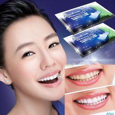 10Pcs/5Pair Professional Oral Care Hygiene Teeth Whiten Tools Teeth Whitening Strips Gel Dental Bleaching Tooth Whitening Bleach