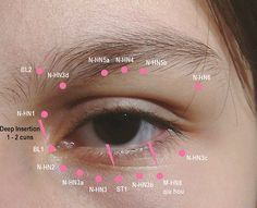 Eye acupuncture. Mineola Acupuncture | New York Acupuncture http://kimura-acupuncture.com/