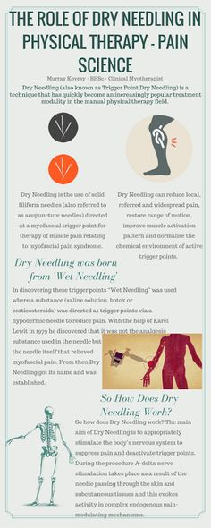 Infographic of The Role of Dry Needling in Physical Therapy - Pain Science from an earlier blog post. Enjoy! #dryneedling #Myotherapy #Northcote http://www.motionmyotherapy.com/single-post/2016/09/04/The-Role-of-Dry-Needling-in-Physical-Therapy---Pain-Science
