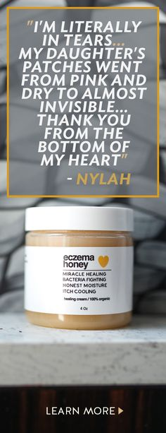 Want to live your life without the daily struggles of eczema? Made with pure honey and grated beeswax, Eczema Honey is safe, non-toxic and super effective at controlling the itch. Try our 100 all natural organic honey healing cream today! Eczema Remedies, Health Remedies, Home Remedies, Health Tips, Health And Wellness, Health And Beauty, Skin Treatments, Natural Cures, Beauty Secrets