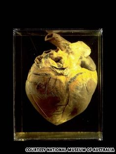 Phar Lap- The preserved Heart of famous racehorse Phar Lap born and raised in NEW ZEALAND