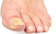 yellow, thick, sometimes cracked nails are a sign of toenail fungus